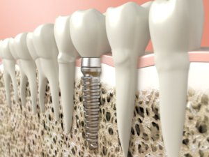 dental implant winchendon